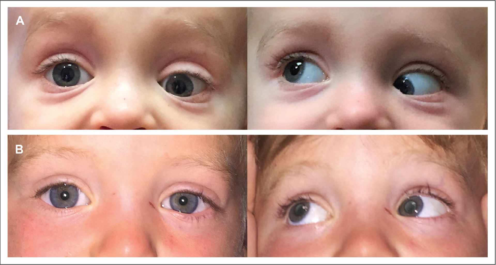 (A) The patient presented with a significant left eye hypotropia and elevation deficiency on adduction. (B) Excellent improvement in alignment was achieved with left superior oblique tendon lengthening, shown here 1 week after surgery.