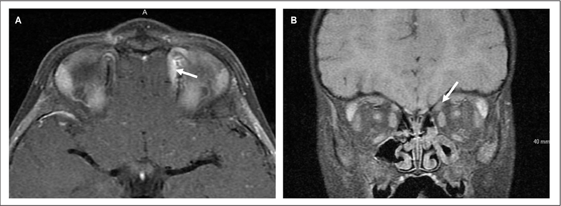 (A) Magnetic resonance imaging with water excitation reveals enhancement of the left superior oblique tendon (arrow) with good visualization of the trochlea on axial view. (B) Left superior oblique enhancement (arrow) and left maxillary sinus thickening is seen on coronal view.