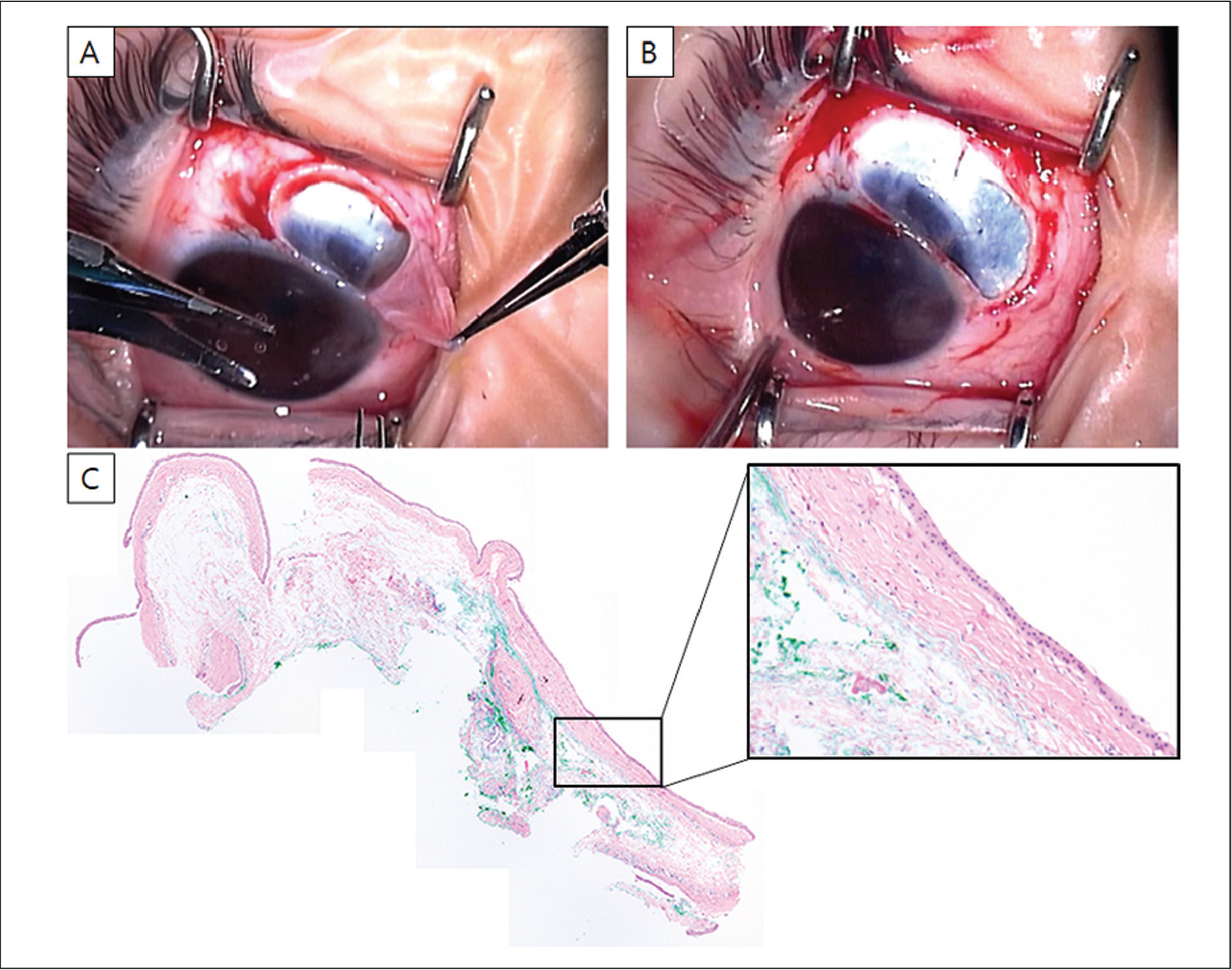 (A and B) Anterior segment photography during surgery. (A) After excision of the anterior wall of the scleral cyst, (B) the underlying scleral bed was thin. (C) Photomicrograph of an excised cystic wall showed a benign cystic lesion lined by non-keratinizing squamous epithelium with stromal edematous change (hematoxylin–eosin stain, original magnification ×100).