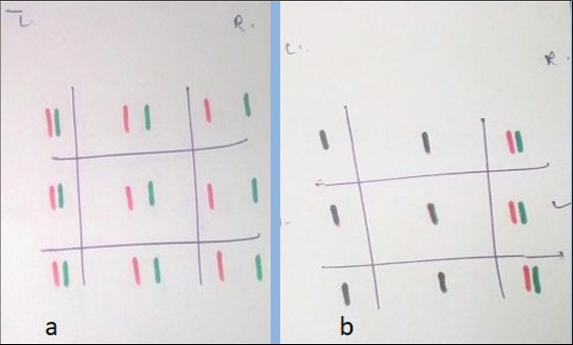 (A) Preoperative diplopia chart shows horizontal crossed diplopia in all gazes with maximum separation in dextroversion. (B) Postoperative diplopia chart shows no diplopia in primary position and minimal horizontal diplopia in extreme dextroversion.