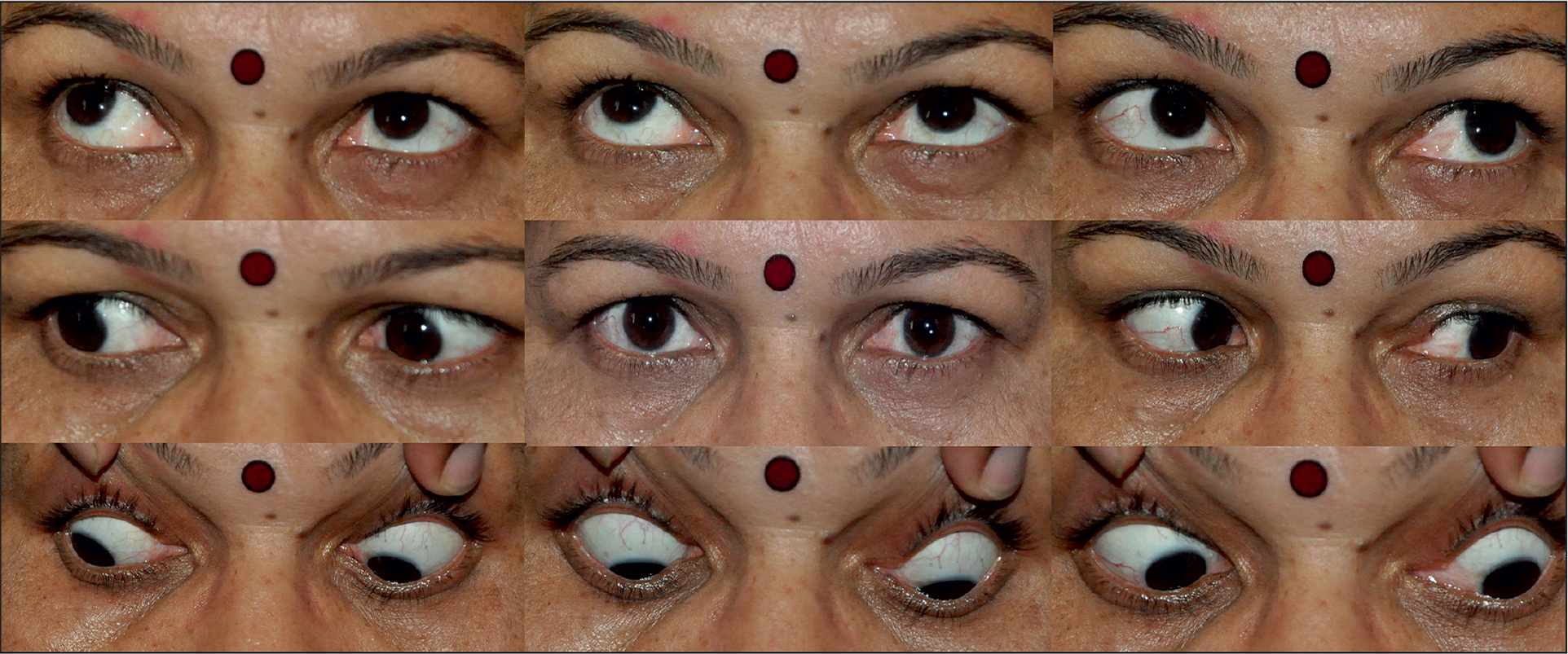 Postoperative nine-gaze photograph shows the patient was orthotropic with improvement in adduction at 6 months.