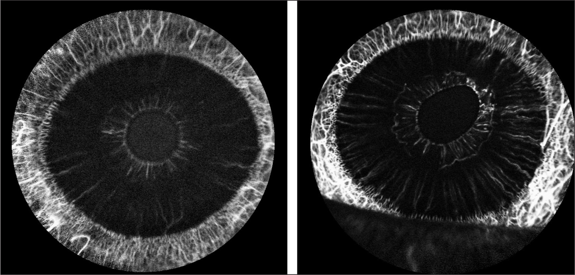 Iris angiogram showing sectoral iris vasculature discontinuity in the left eye 2 months after surgery.