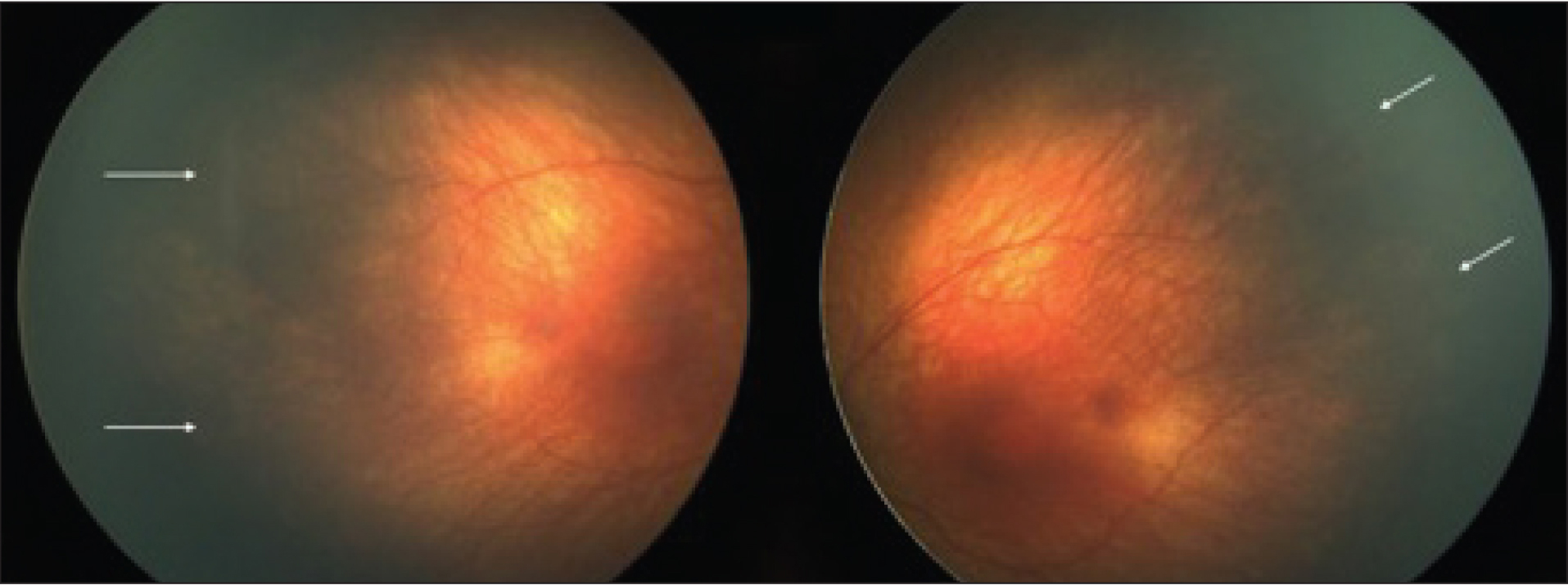 Postconceptual age of 42 weeks: stage 1 retinopathy of prematurity in zone II with 6 clock hours of involvement and no plus disease in both eyes.