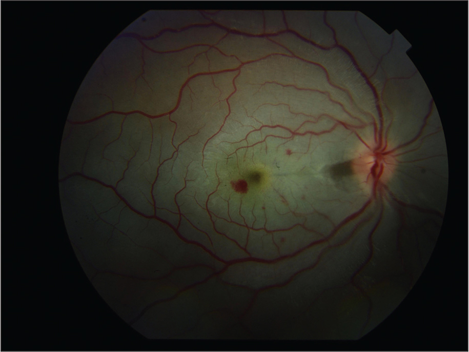 "Fundus photograph of the right eye demonstrating intraretinal hemorrhages and a ""cherry red spot."""