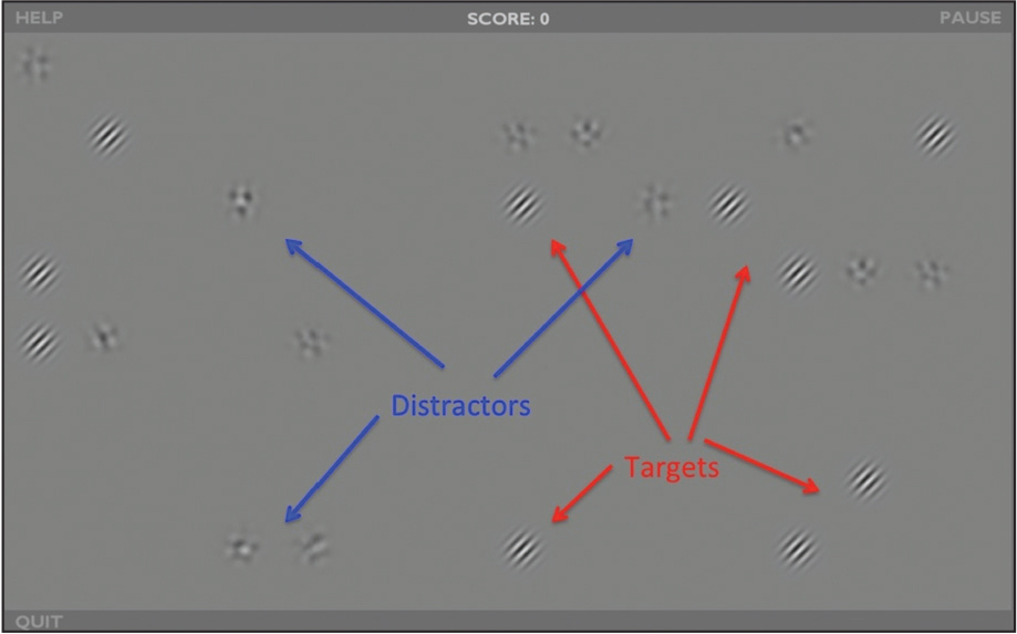 Example of the video game layout. Participants were asked to tap on the target (oriented Gabor patches, red arrows) while avoiding distractors (blue arrows). Contrast of both targets and distractors was adapted based on performance on the task.