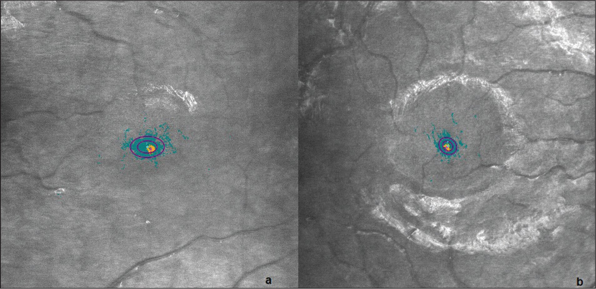Fixation pattern of the (A) amblyopic eye and (B) non-amblyopic eye of a patient. Bivariate contour ellipse area for 63% of points (BCEA63) was 0.7°2 for the amblyopic eye and 0.4°2 for the non-amblyopic eye. Bivariate contour ellipse area for 95% of points (BCEA95) was 2.1°2 for the amblyopic eye and 1.3°2 for the non-amblyopic eye.
