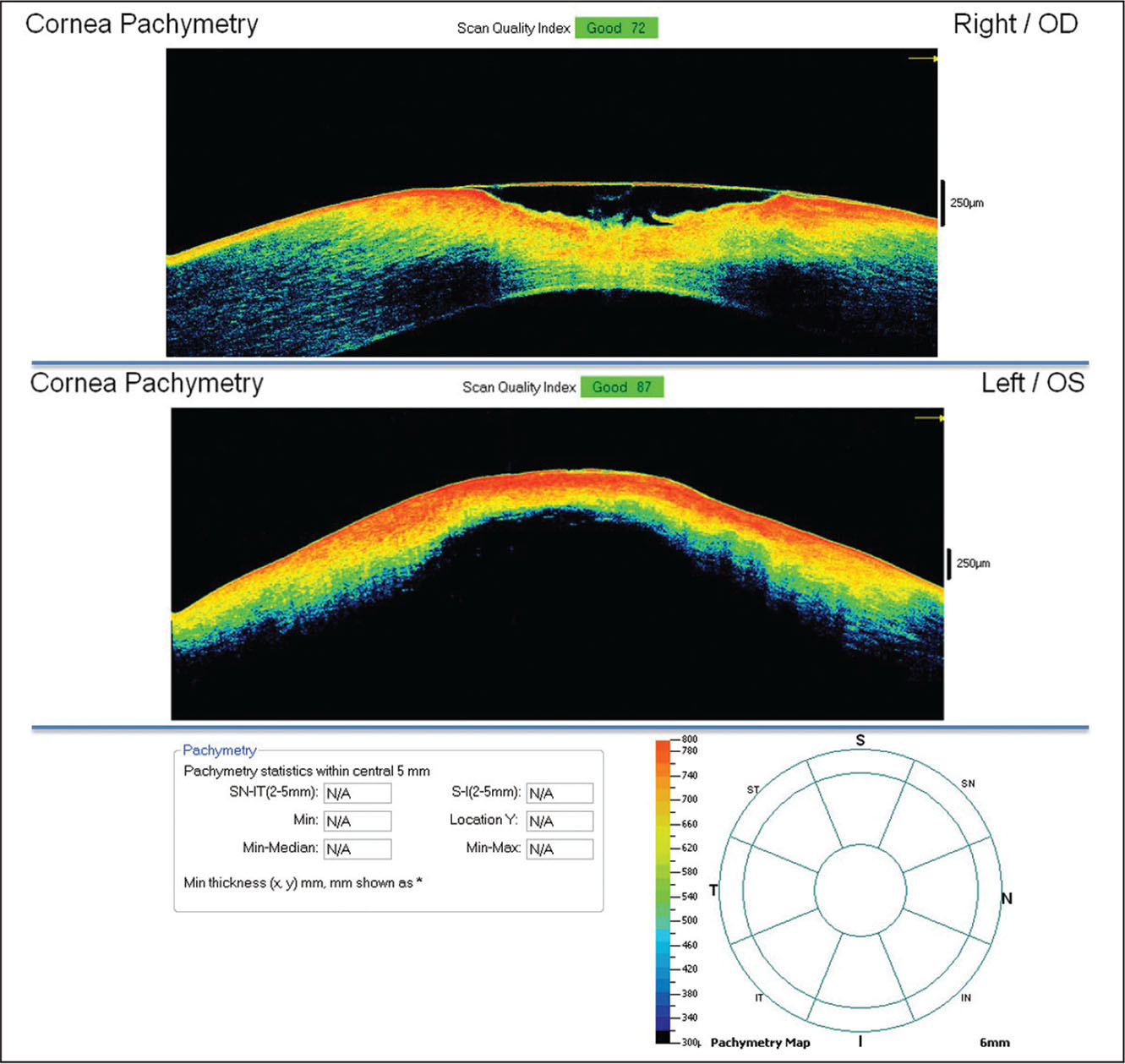 Anterior segment optical coherence tomography of both eyes during initial examination performed at the level of the corneal ulceration in the right eye and peak of the descemetocele in the left eye to assess the corneal thickness.
