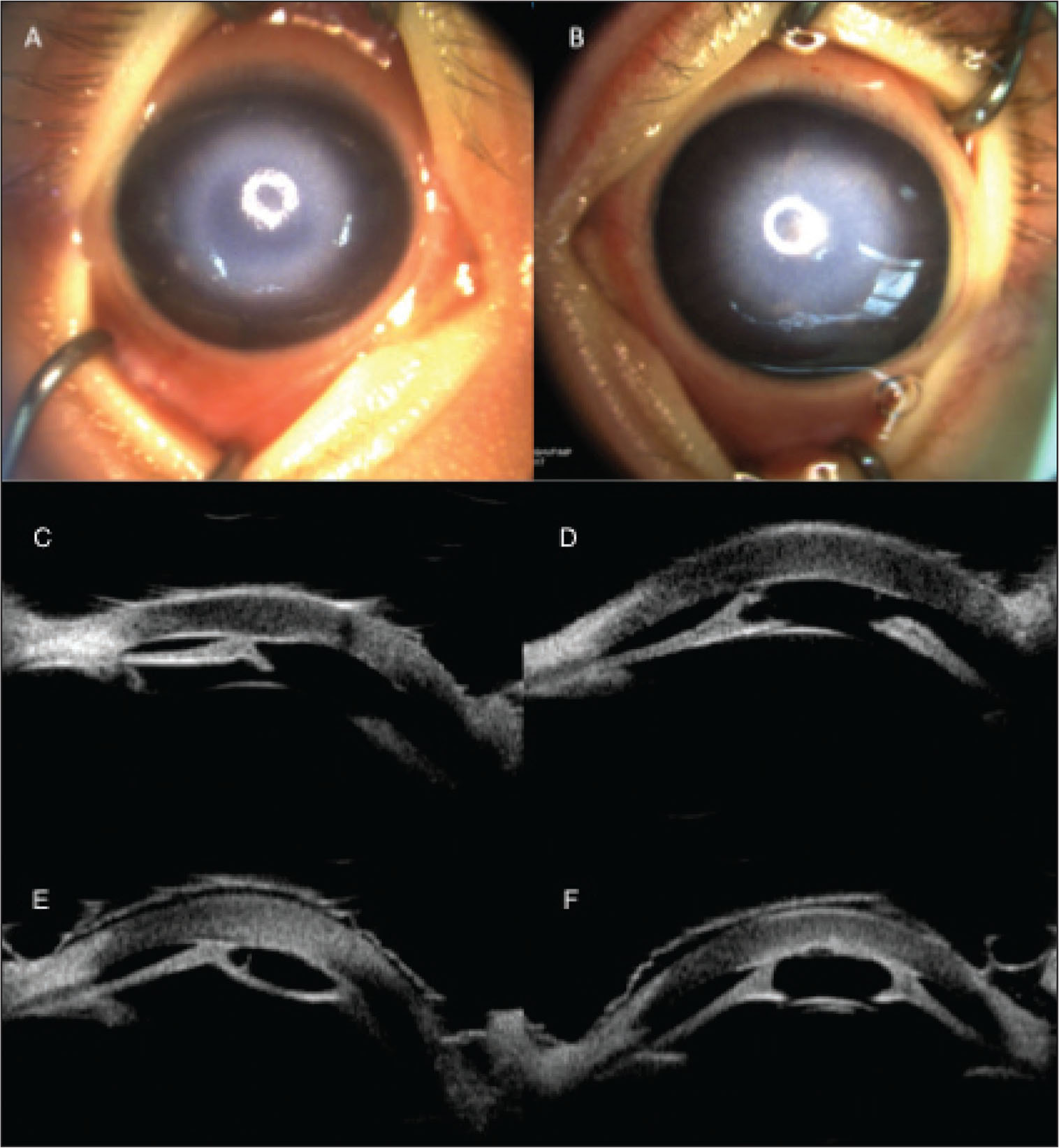(A and B) Preoperative external photography showing bilateral dense central corneal opacities. Preoperative ultrasound biomicroscopy images showing iridocorneal adhesions and central corneal thickening in the (C and D) right and (E and F) left eyes.
