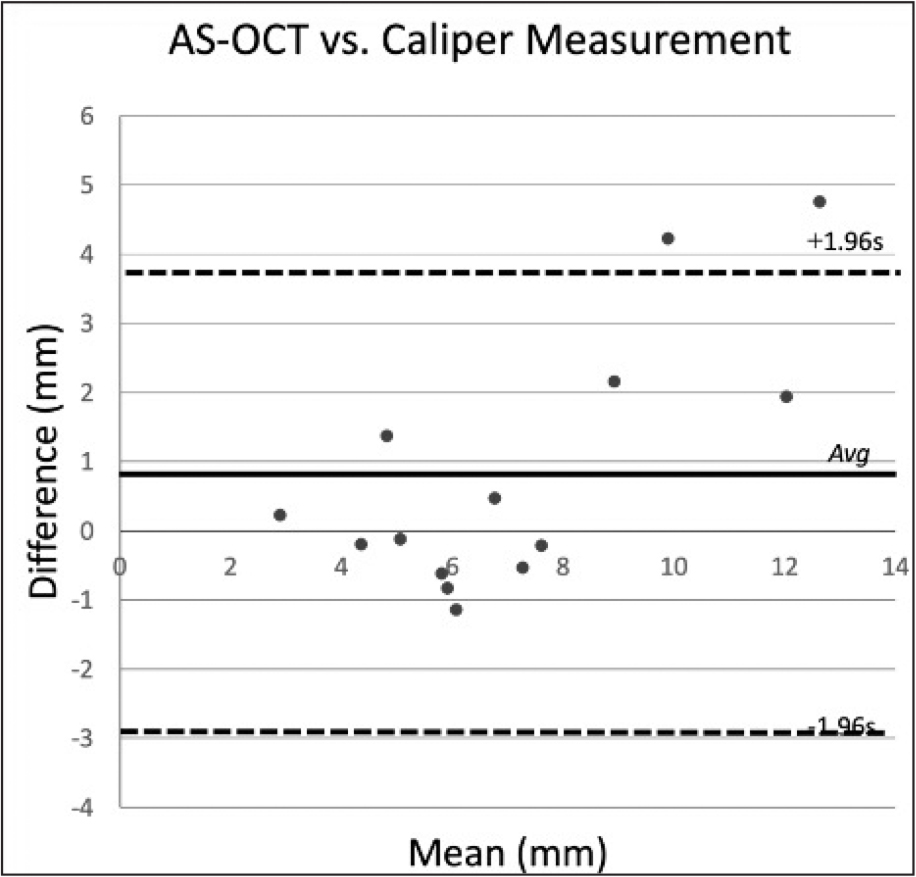 Bland-Altmann plot for differences between anterior segment optical coherence tomography (AS-OCT) and caliper measurements. The differences between AC-OCT and caliper measurements (y axis) are plotted as a function of the average between AS-OCT and caliper measurements (x axis). The middle line represents the average of differences between AS-OCT and caliper measurements, and the upper and lower lines represent 1.96 standard deviations from the average.