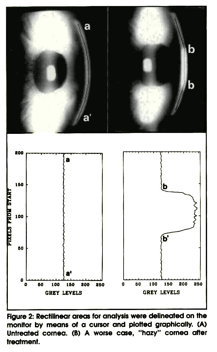 "Figure 2: Rectilinear areas for analysis were delineated on the monitor by means of a cursor and plotted graphically. (A) Untreated cornea. (B) A worse case, ""hazy"" cornea after treatment."