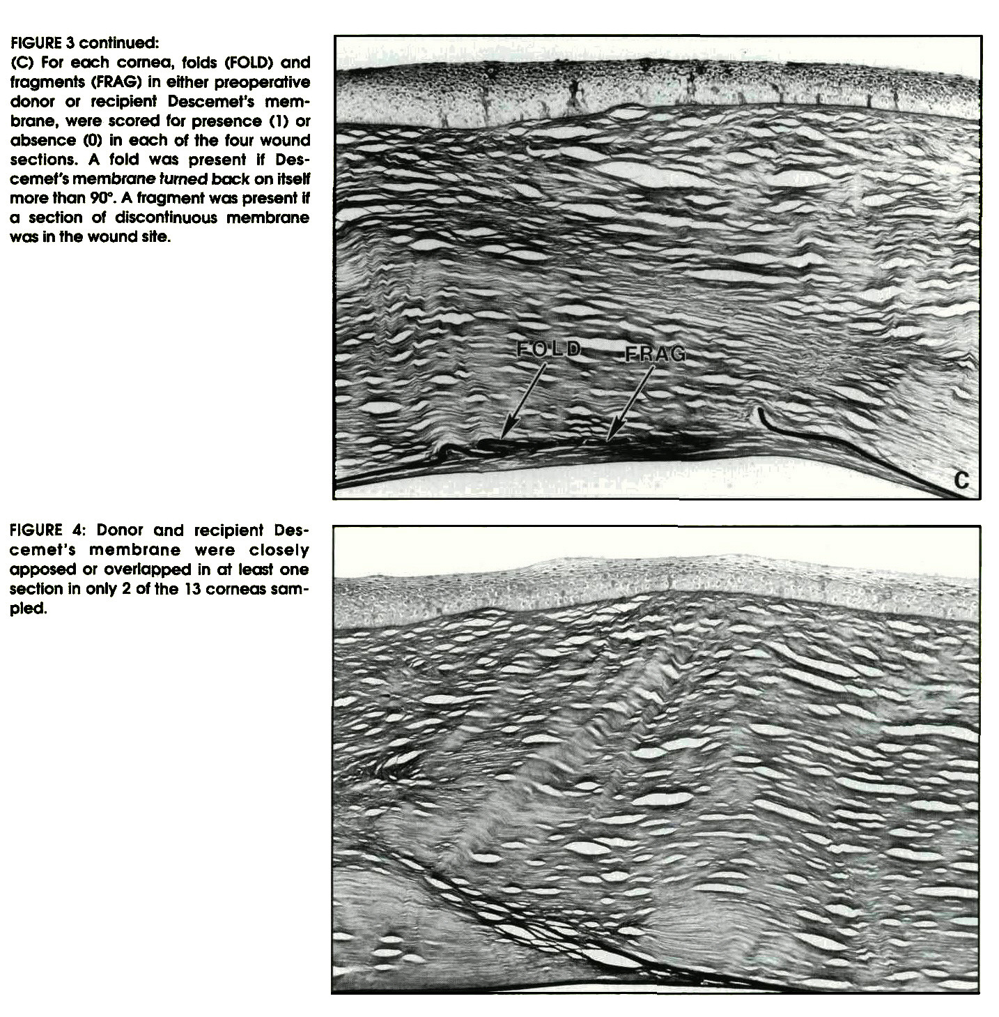FIGURE 3 continued:(C) For each comea, folds (FOLD) and fragments (FRAG) in either preoperative donor or recipient Descemet's membrane, were scored for presence (1) or absence (0) in each of the four wound sections. A fold was present if Descemet's membrane fumed back on itself more than 90°. A fragment was present If a section of discontinuous membrane was in the wound site.FIGURE 4: Donor and recipient Descemet's membrane were closely apposed or overlapped in at least one section in only 2 of the 13 corneas sampled.