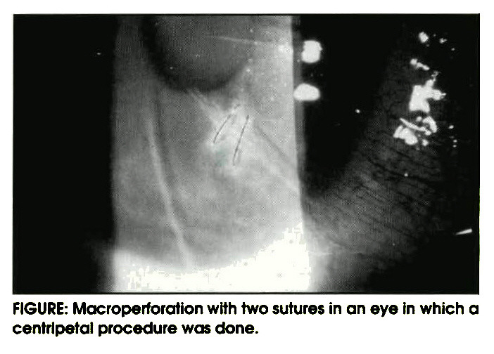 FIGURE: Macroperforation with two sutures in an eye in which a centripetal procedure was done.