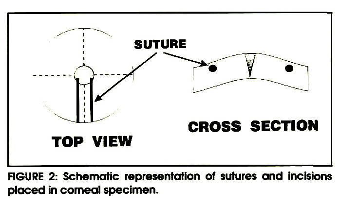 FIGURE 2: Schematic representation of sutures and incisions placed in corneal specimen.