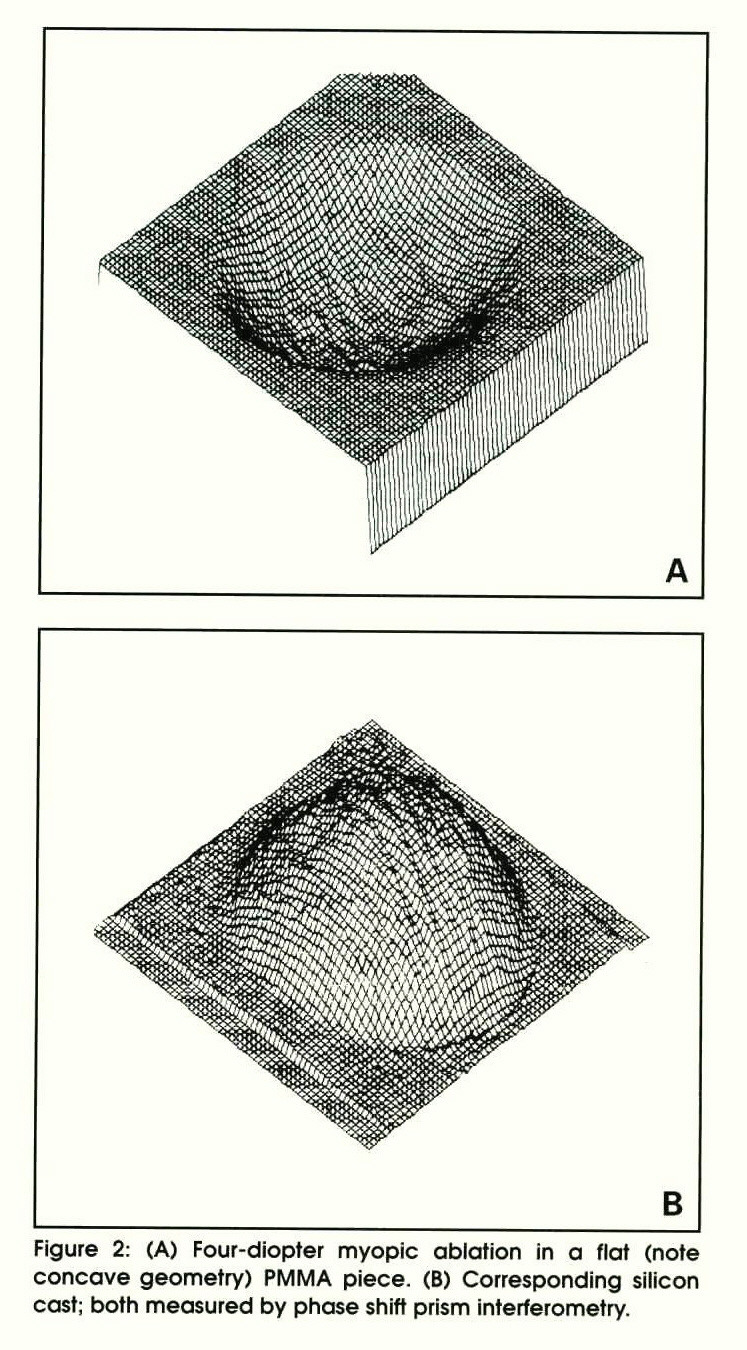 Figure 2: (A) Four-diopter myopic ablation in a flat (note concave geometry) PMMA piece. (B) Corresponding silicon cast; both measured by phase shift prism interferometry.