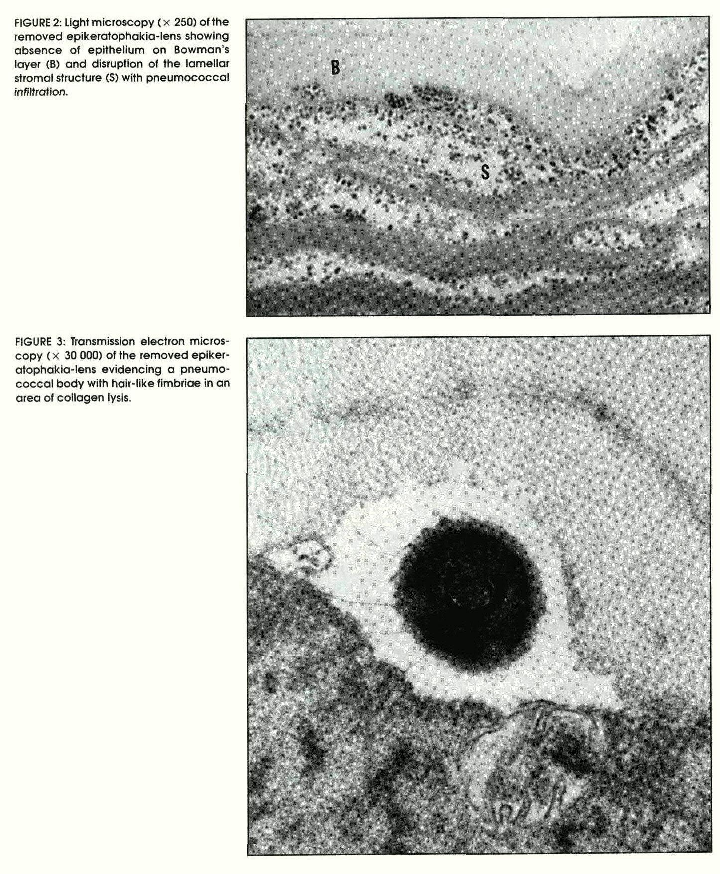 FIGURE 2: Light microscopy ( x 250) of the removed epikeratophakia-lens showing absence of epithelium on Bowman's layer (B) and disruption of the lamellar stromal structure (S) with pneumococcal infiltration.FIGURE 3: Transmission electron microscopy (x 30 000) of the removed epikeratophakia-lens evidencing a pneumococcal body with hair-like fimbriae in an area of collagen lysis.