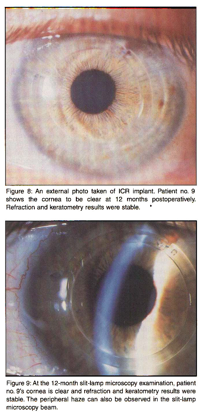 Figure 8: An external photo taken of ICR implant. Patient no. 9 shows the cornea to be clear at 12 months postoperatively. Refraction and keratometry results were stable.Figure 9: At the 12-month slit-lamp microscopy examination, patient no. 9's cornea is clear and refraction and keratometry results were stable. The peripheral haze can also be observed in the slit-lamp microscopy beam.