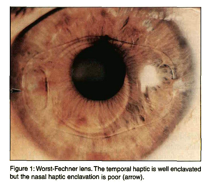Figure 1 : Worst-Fechner lens. The temporal haptic is well enclavated but the nasal haptic enclavation is poor (arrow).