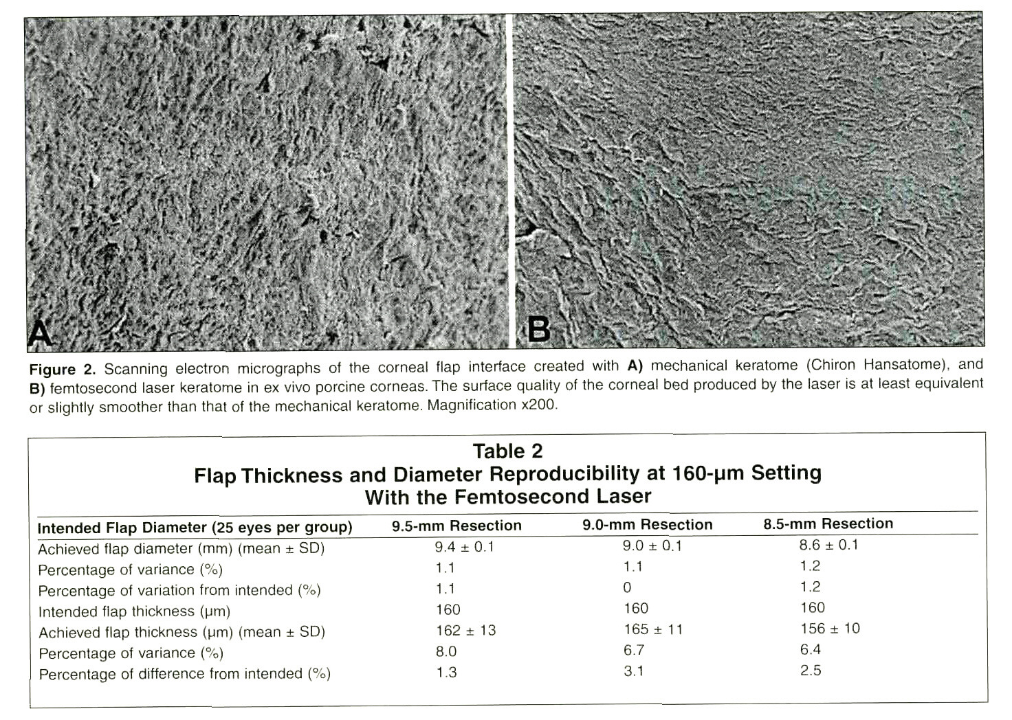 Figure 2. Scanning electron micrographs of the corneal flap interface created with A) mechanical keratome (Chiron Hansatome), and B) femtosecond laser keratome in ex vivo porcine corneas. The surface quality of the corneal bed produced by the laser is at least equivalent or slightly smoother than that of the mechanical keratome. Magnification x200.Table 2Flap Thickness and Diameter Reproducibility at 160-pm Setting With the Femtosecond Laser