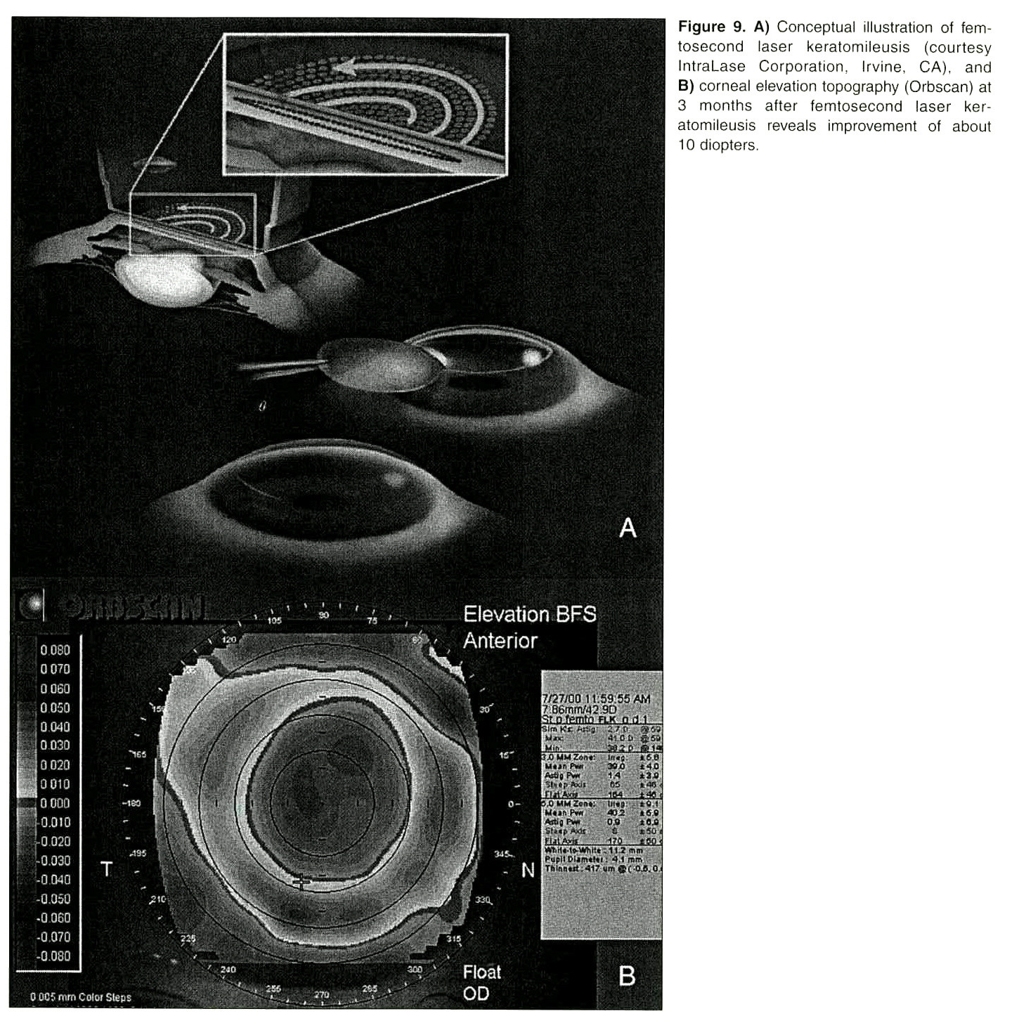 Figure 9. A) Conceptual illustration of femtosecond laser keratomileusis (courtesy IntraLase Corporation, Irvine, CA), and B) corneal elevation topography (Orbscan) at 3 months after femtosecond laser keratomileusis reveals improvement of about 10 diopters.