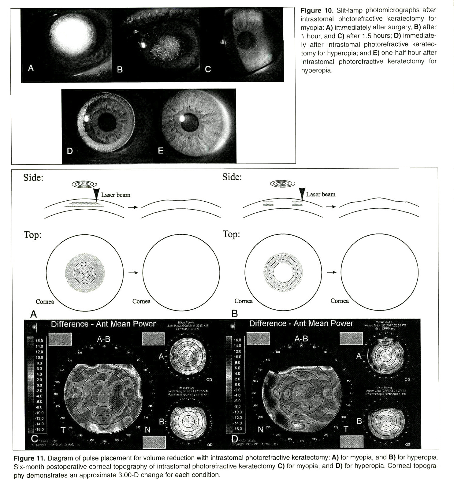 Figure 10. Slit-lamp photomicrographs after intrastomal photorefractive keratectomy for myopia: A) immediately after surgery, B) after 1 hour, and C) after 1 .5 hours; D) immediately after intrastomal photorefractive keratectomy for hyperopia; and E) one-half hour after intrastomal photorefractive keratectomy for hyperopia.Figure 11. Diagram of pulse placement for volume reduction with intrastomal photorefractive keratectomy; A) for myopia, and B) for hyperopia. Six-month postoperative corneal topography of intrastomal photorefractive keratectomy C) for myopia, and D) for hyperopia. Corneal topography demonstrates an approximate 3.00-D change for each condition.