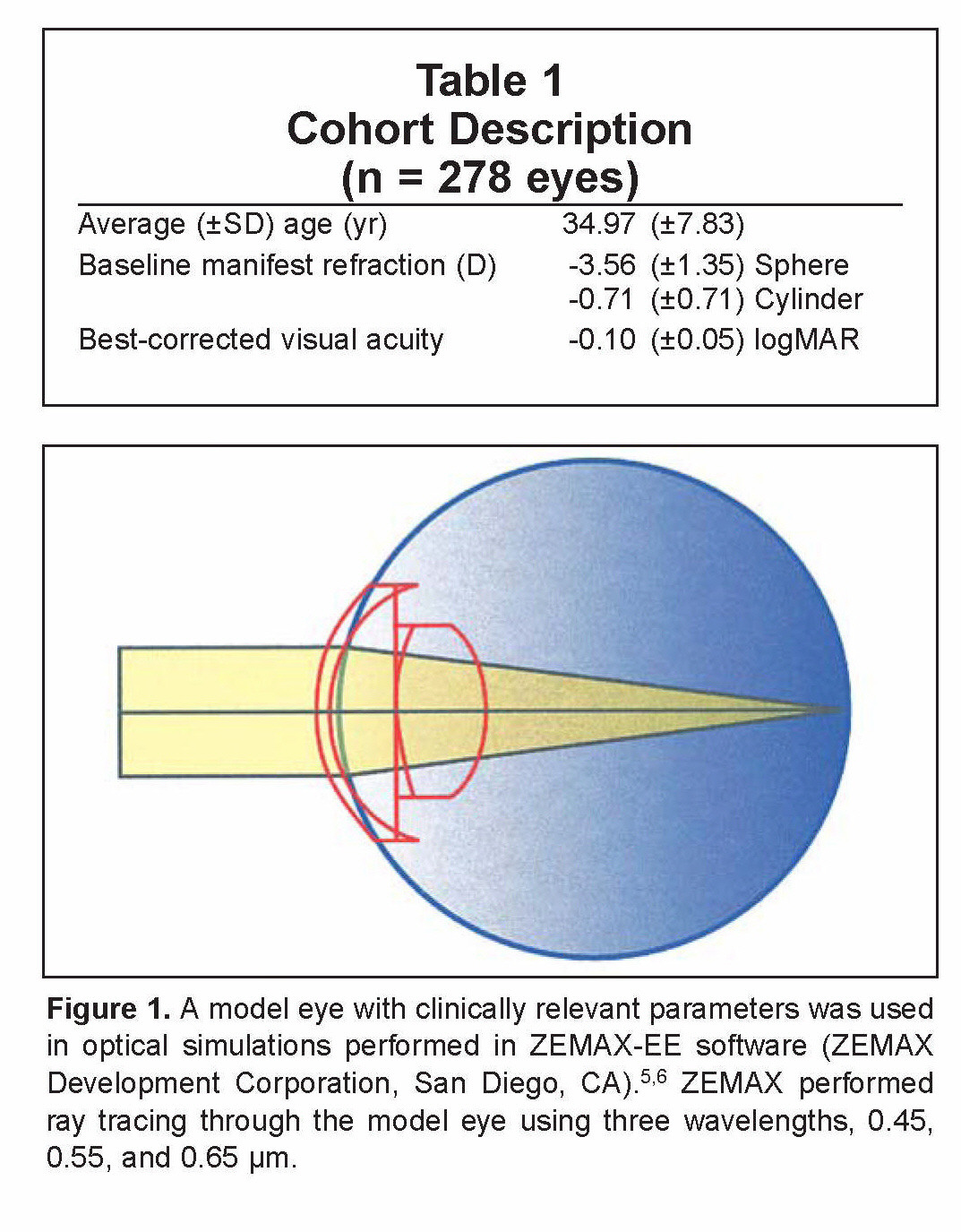 Corneal Asphericity and Retinal Image Quality: A Case Study and