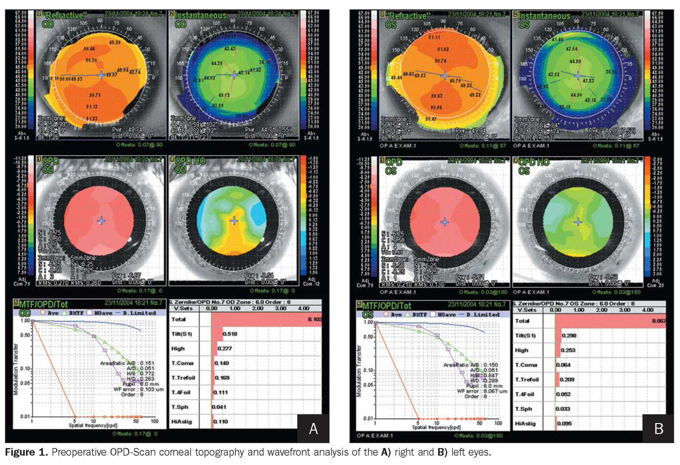 Figure 1. Preoperative OPD-Scan corneal topography and wavefront analysis of the A) right and B) left eyes.