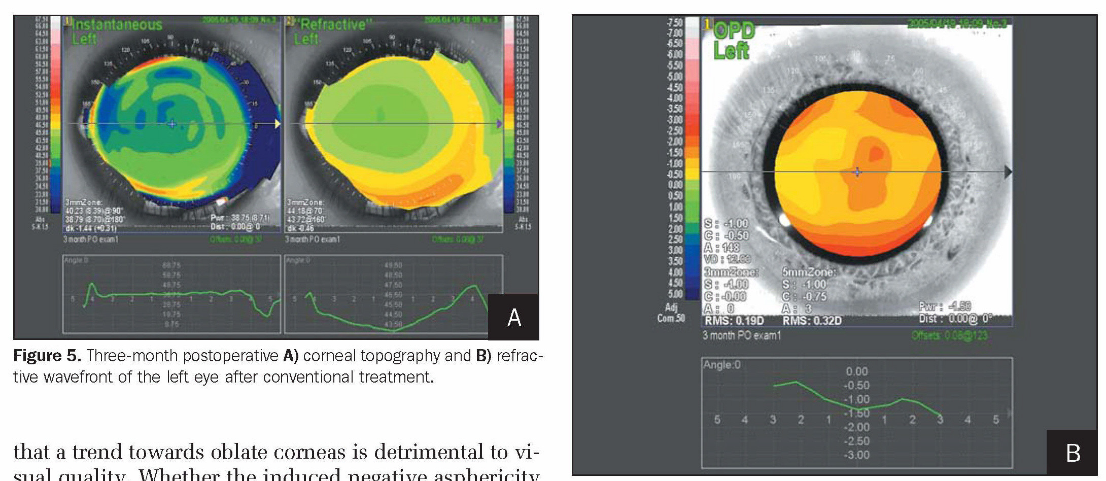 Figure 5. Three-month postoperative A) corneal topography and B) refractive wavefront of the left eye after conventional treatment.