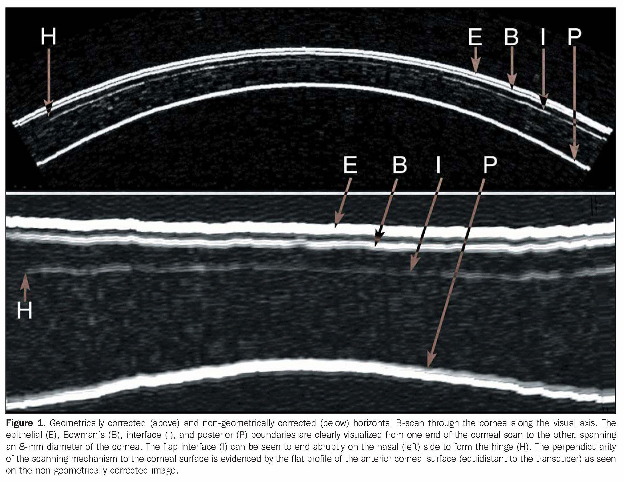 Figure 1. Geometrically corrected (above) and non-geometrically corrected (below) horizontal B-scan through the cornea along the visual axis. The epithelial (E), Bowman's (B), interface (I), and posterior (P) boundaries are clearly visualized from one end of the corneal scan to the other, spanning an 8-mm diameter of the cornea. The flap interface (I) can be seen to end abruptly on the nasal (left) side to form the hinge (H). The perpendicularity of the scanning mechanism to the corneal surface is evidenced by the flat profile of the anterior corneal surface (equidistant to the transducer) as seen on the non-geometrically corrected image.