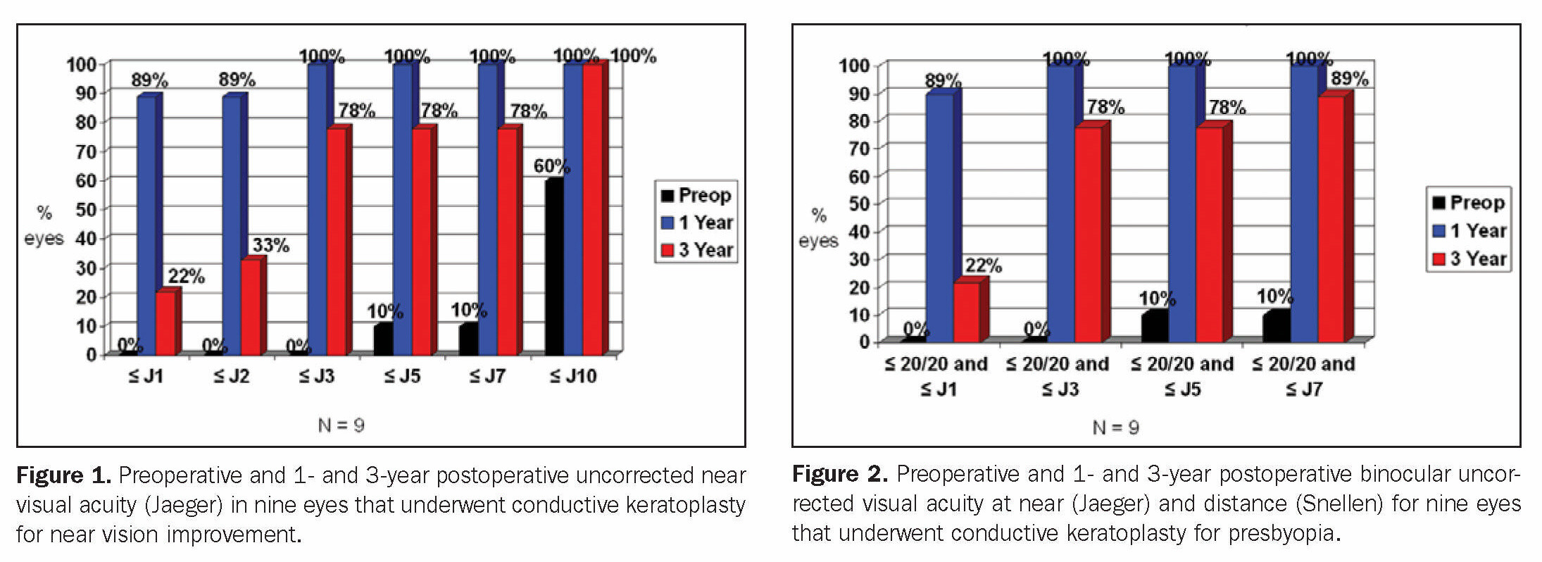 Figure 1. Preoperative and 1- and 3-year postoperative uncorrected near visual acuity (Jaeger) in nine eyes that underwent conductive keratoplasty for near vision improvement.Figure 2. Preoperative and 1- and 3-year postoperative binocular uncorrected visual acuity at near (Jaeger) and distance (Snellen) for nine eyes that underwent conductive keratoplasty for presbyopia.