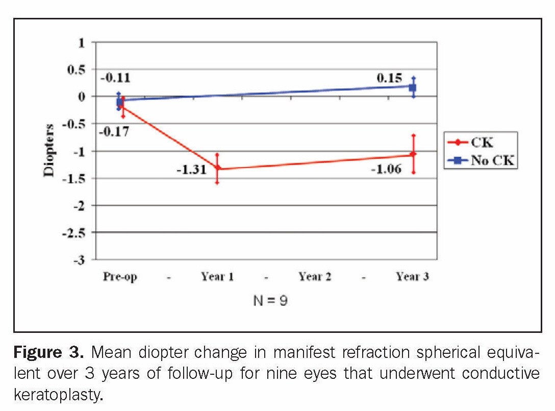 Figure 3. Mean diopter change in manifest refraction spherical equivalent over 3 years of follow-up for nine eyes that underwent conductive keratoplasty.