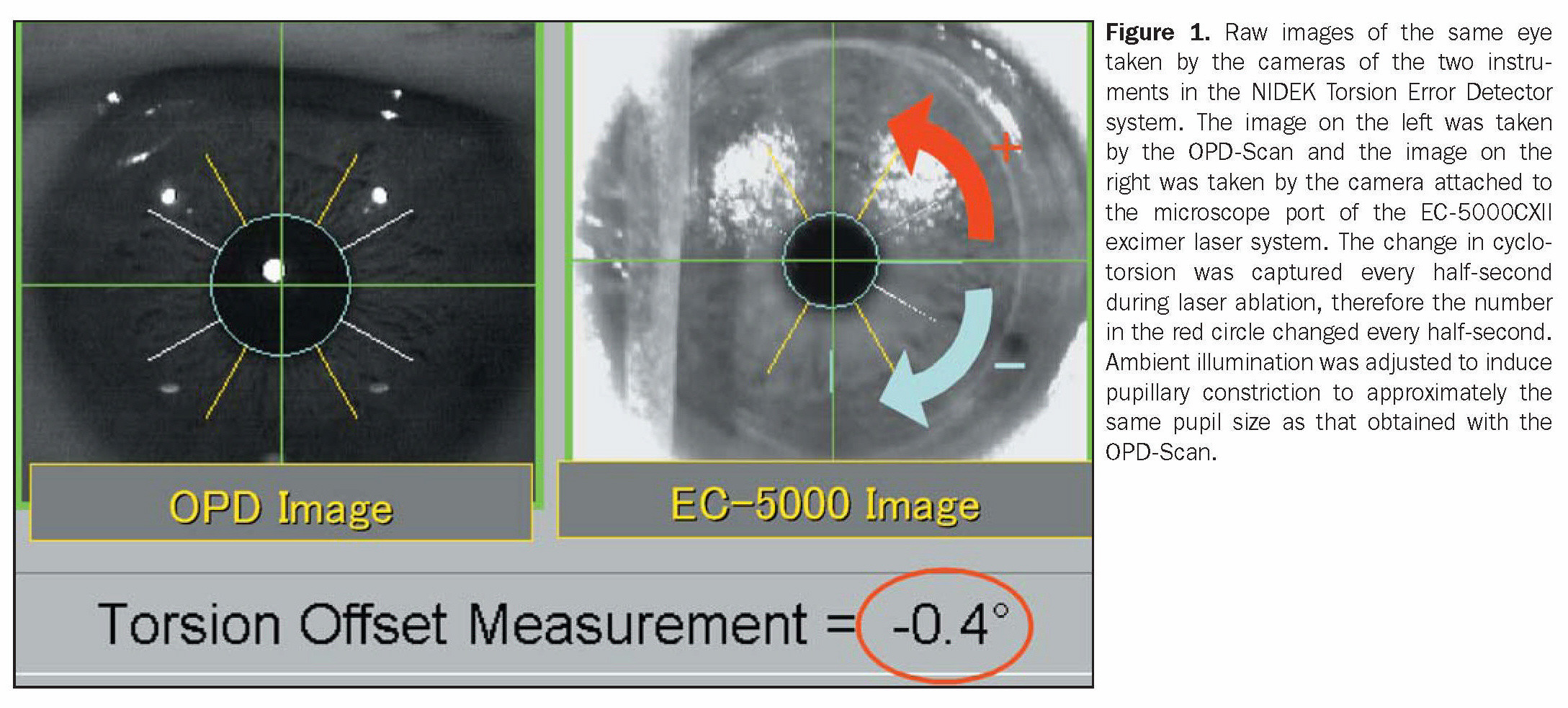 Figure 1. Raw ?mages of the same eye taken by the cameras of the two instruments in the NIDEK Torsion Error Detector system. The image on the left was taken by the OPD-Scan and the image on the right was taken by the camera attached to the microscope port of the EC-5000CXII excimer laser system. The change in cyclotorsion was captured every half-second during laser ablation, therefore the number in the red circle changed every half-second. Ambient illumination was adjusted to induce pupillary constriction to approximately the same pupil size as that obtained with the OPD-Scan.