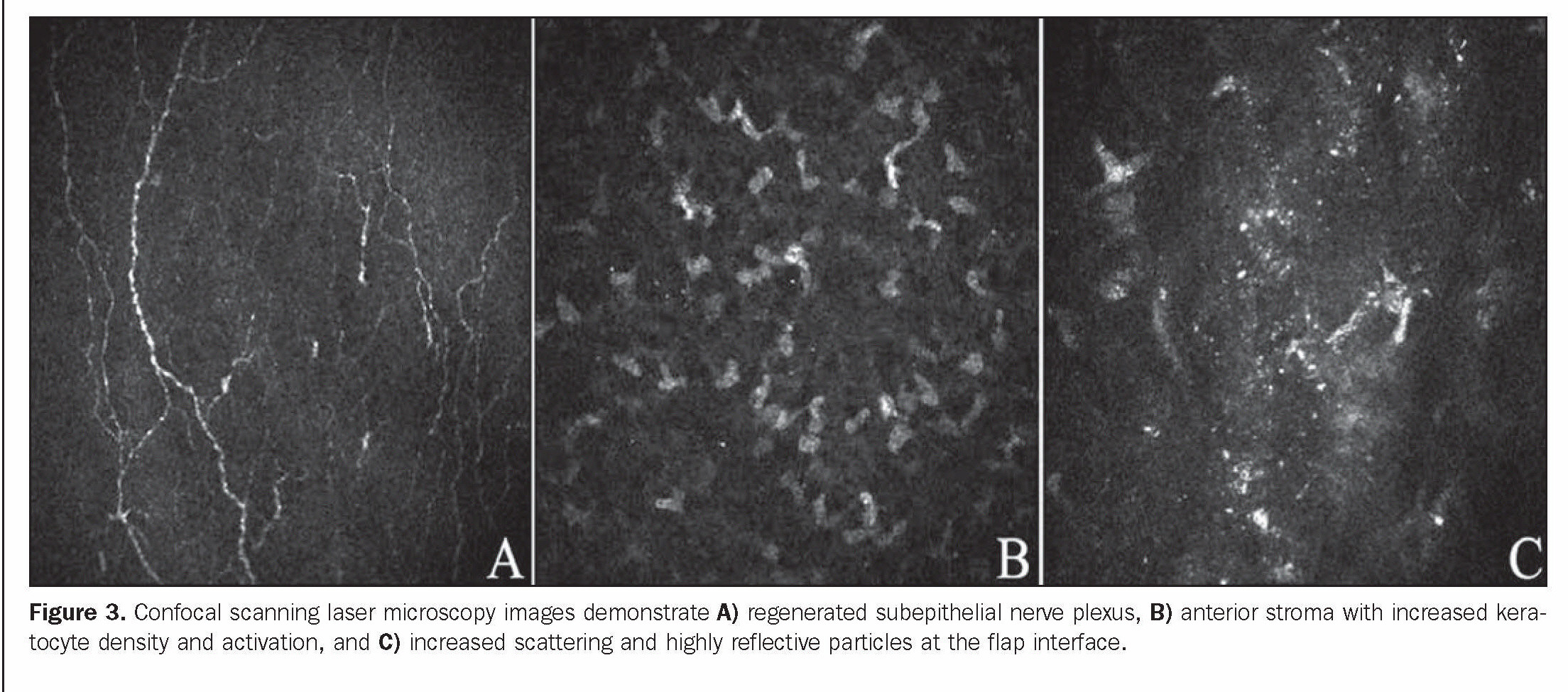Figure 3. Confocal scanning laser microscopy images demonstrate A) regenerated subepithelial nerve plexus, B) anterior stroma with increased keratocyte density and activation, and C) increased scattering and highly reflective particles at the flap interface.