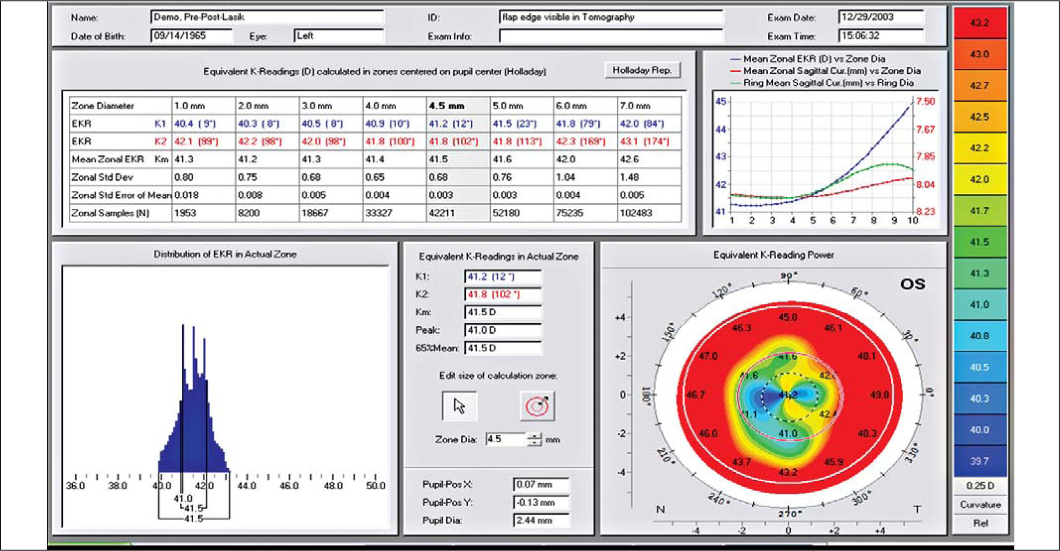 Detailed Report of the Equivalent K-Reading (EKR) for an Example LASIK Eye. The Mean Zonal Value Is Shown in the Table in the Gray Shaded Central Column Under the 4.5-mm Zone. There Are ~42,000 Points Used to Determine the Mean Value. the Frequency Distribution of Powers over the 4.5-mm Zone Is Shown in the Lower Left Hand Corner. Note the Smaller Variation in the Distribution of the EKR Values (3.30 D, 39.90 to 43.20 D) over the 4.5-mm Zone for the LASIK Versus the RK Eye. The Mean Zonal EKR (D) (dashed Blue Line) Versus the Zone Diameter Is Shown Graphically in the Upper Right Hand Corner.