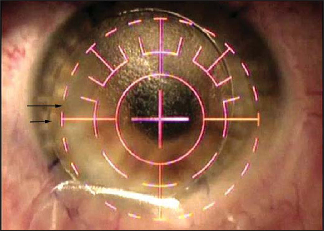 Decentered Flap. The Shorter Arrow Points to the Flap Bed; the Longer Arrow Points to the Edge of the Excimer Laser Reticle, Which Is Centered over the Pupil.