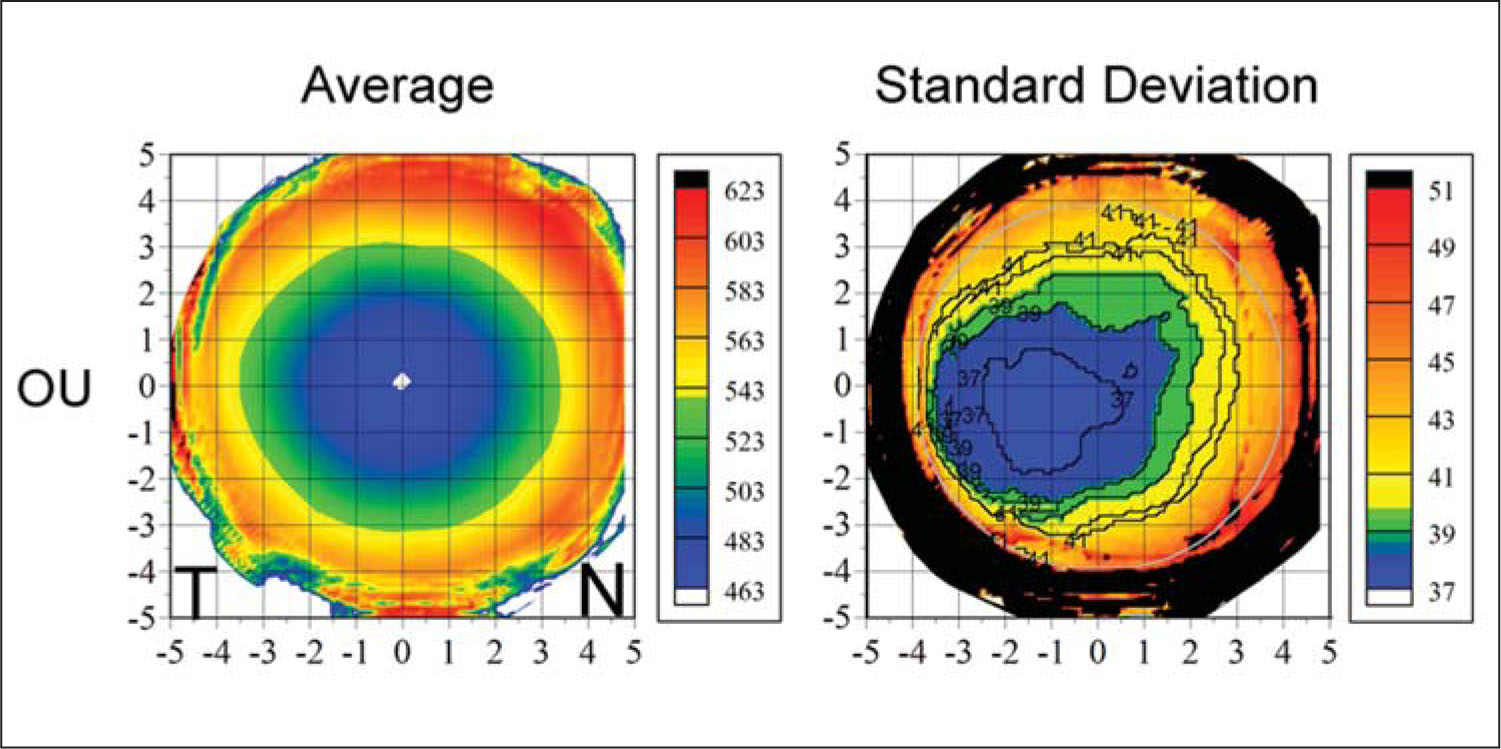 Topographic Map of the Average and Standard Deviation of Stromal Thickness for the Population Centered on the Thinnest Point. The Color Scale Represents the Stromal Thickness in Microns. A Cartesian 1-mm Grid Is Superimposed with the Origin at the Thinnest Point. Both Maps Include All Eyes with Left Eyes Mirrored (positive x-Values Represent the Nasal Stroma and Negative Values Represent the Temporal Stroma).