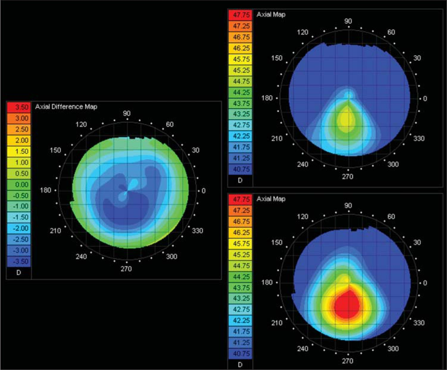 Preoperative Axial Map (bottom Right), Postoperative Axial Map (top Right), and Difference Axial Map (left), Showing Significant Topographic Improvement Following Topography-Guided Photorefractive Keratectomy and Corneal Cross-Linking.