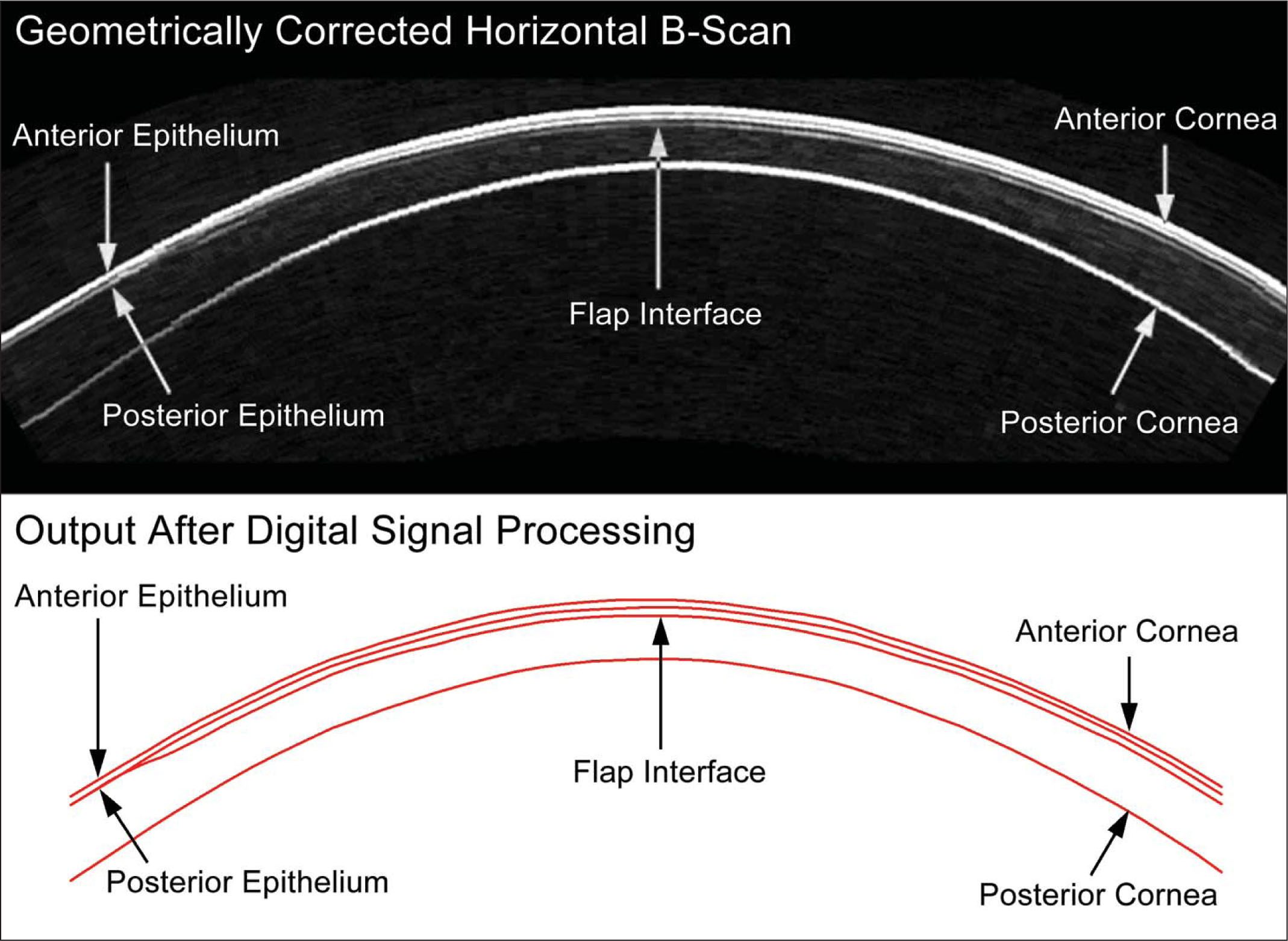 Artemis Very-High Frequency Digital Ultrasound Horizontal B-Scan of a Cornea with a Flap Created Using the VisuMax Femtosecond Laser. Centrally, the Reinstein Flap Thickness Was Measured as 113 μm, Which Was 3 μm Thicker than the Predicted Flap Thickness of 110 μm. Digital Signal Processing Is Performed on the B-Scan Signal and Layer Thickness Measurements Are Obtained by a Computer Algorithm on the I-Scan, Resulting in the Red Line Image of the Interfaces.