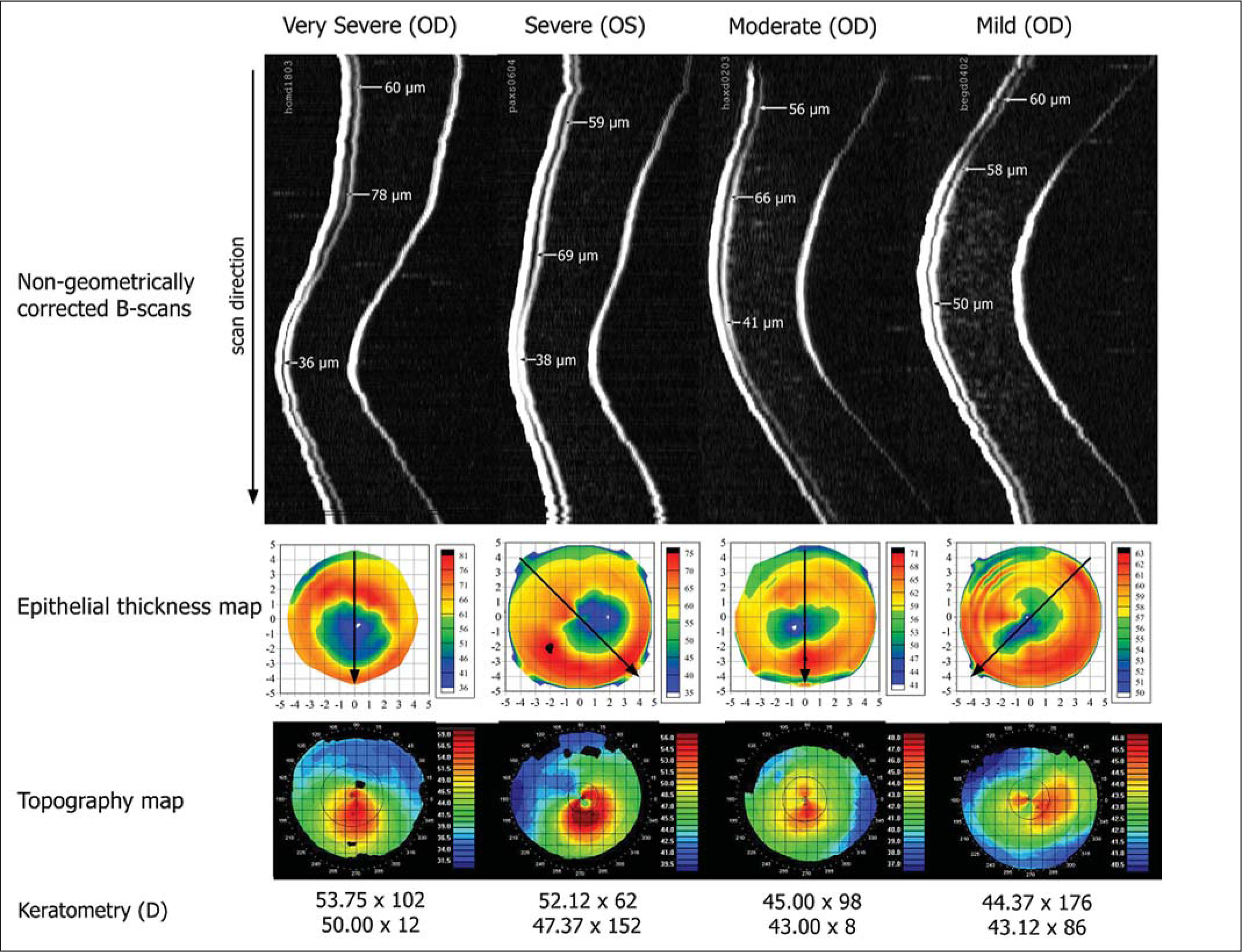 Non-Geometrically Corrected Artemis B-scan Images Obtained Using the Artemis Very High-Frequency Digital Ultrasound Arc-Scanner, Artemis Epithelial Thickness Profile Maps, and Atlas Axial Curvature Maps for Four Keratoconic Corneas at Different Stages of the Disease Ranging from Severe Keratoconus to Mild Keratoconus.