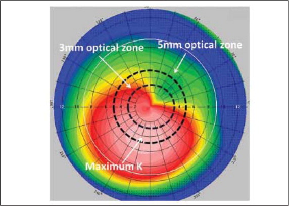 Pentacam sagittal curvature map. Cone location was defined by the Pentacam coordinates of maximum keratometry (maximum K). Cones were divided into three groups: those in which the maximum K was located in the central 3-mm optical zone, in the 3- to 5-mm optical zone, and located outside of the central 5-mm optical zone.