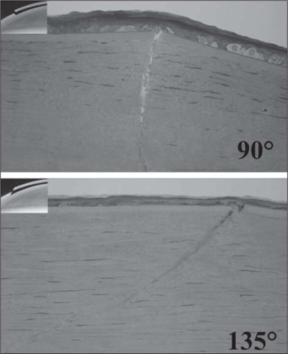 Light micrographs of the anterior stroma obtained 1 week following creation of a 90-μm flap with a conventional 90° side cut (top) and a 90-μm flap with an undercut 135° side cut (bottom) obtained following fixation and staining with toluidine blue. The insets illustrate these flap configurations graphically. Wound gape was less and fewer keratocytes (the darker intrastromal opacities) were visible in the specimen with the undercut (135°) side cut.