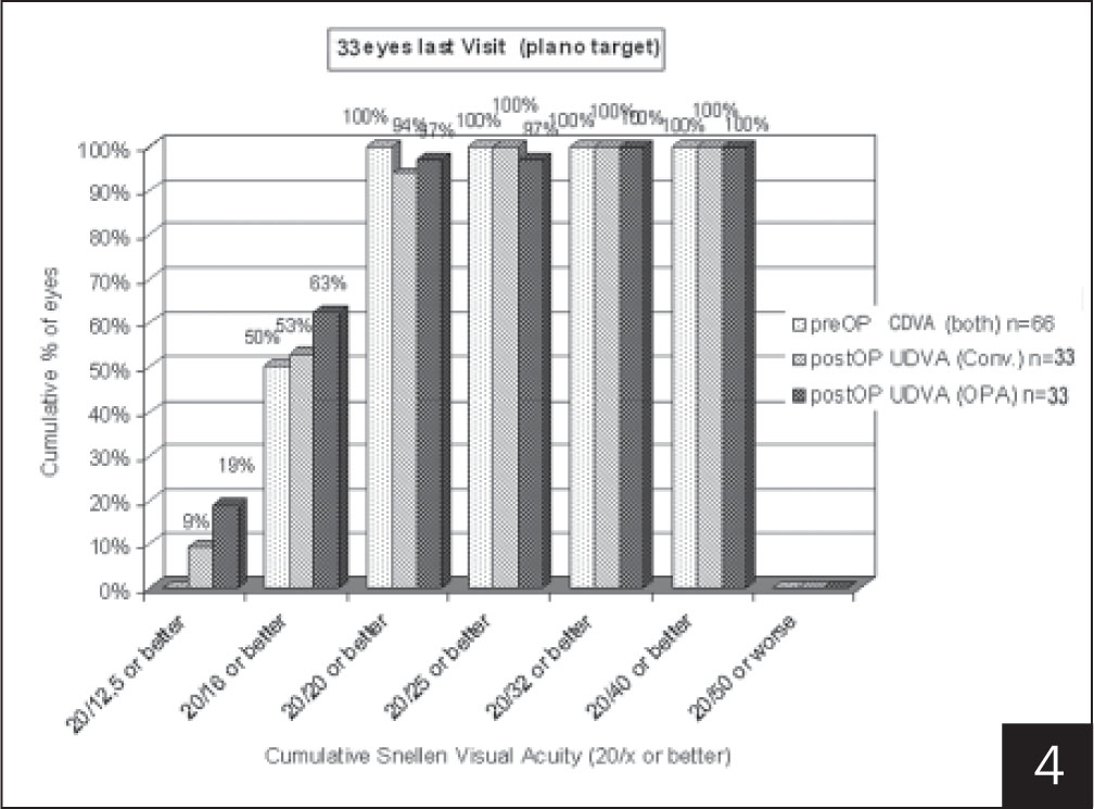 Uncorrected distance visual acuity (UDVA) (CDVA = corrected distance visual acuity). No statistically significant difference was noted between groups (P>.05, paired t test).