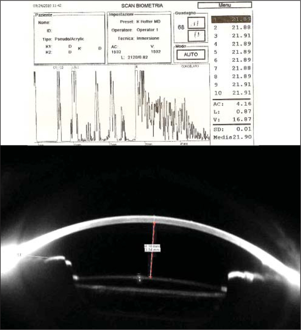 (Top) Immersion ultrasound biometry shows a distance of 4.16 mm between the corneal epithelium (C1) and the anterior intraocular lens surface (L1). (Bottom) In the same eye, the caliper between the corneal epithelium and the anterior intraocular lens surface (white line) shows a distance of 4.14 mm, whereas the distance between the corneal endothelium and the lens is 3.54 mm (red line).
