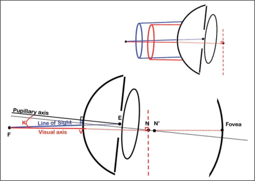 Definition of the axes of the eye. The line of sight is the line joining the fixation point and the center of the entrance pupil (E). It intersects the cornea at point P. The visual axis is the line joining the fixation point and the fovea, passing through the nodal points. It intersects the cornea at point (V). Angle kappa (K) is the angle between the pupillary axis (line perpendicular to the cornea and passing through the center of the entrance pupil) and the visual axis. The insert above diagrammatically illustrates the obliquity and centration differences between a visual axis centered ablation (red) and an entrance pupil centered ablation (blue).