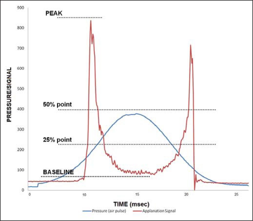 The Ocular Response Analyzer (Reichert Ophthalmic Instruments, Depew, NY) generates a waveform from which parameters originate. Several parameters are derived from the upper 75% of the applanation peaks and others describe characteristics of the upper 50%.