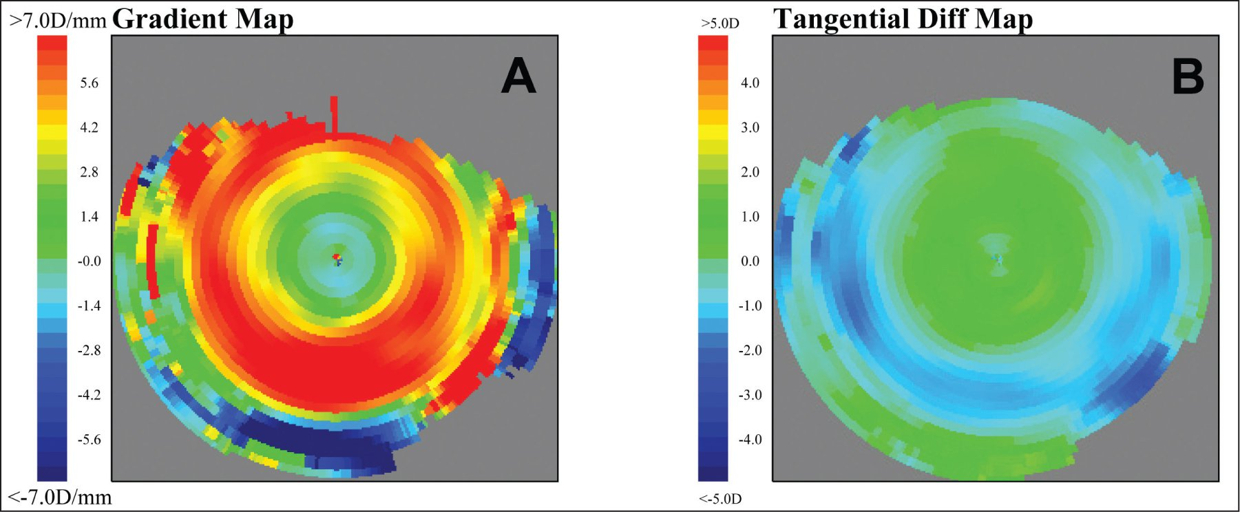 Corneal Curvature Gra nt Map A New Corneal Topography Map to