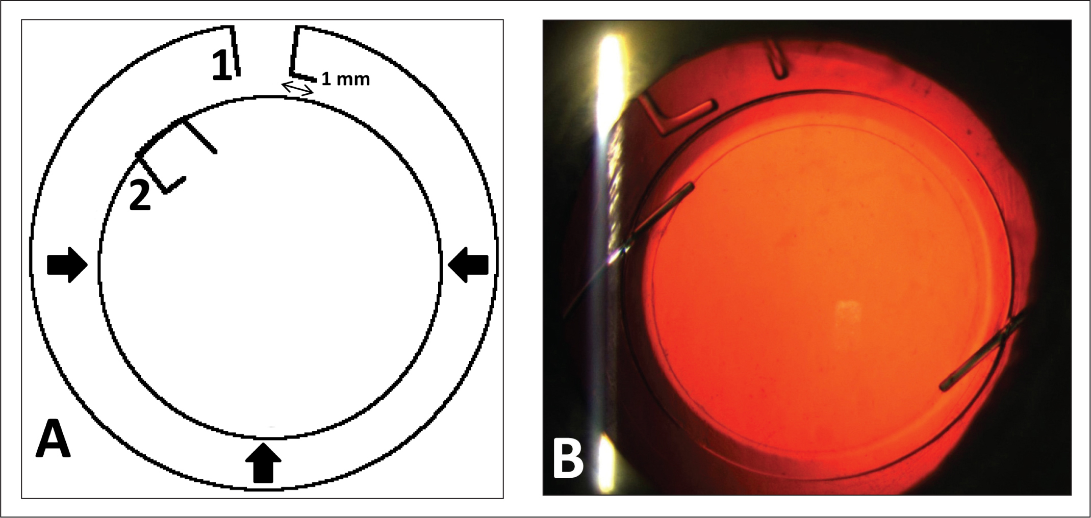 (A) Capsular measuring ring (12 mm) in its relaxed state (1) and compressed capsular measuring ring (2) with overlapping appendices. (B) Slit-lamp photograph showing measurement ring after laser-assisted cataract surgery.