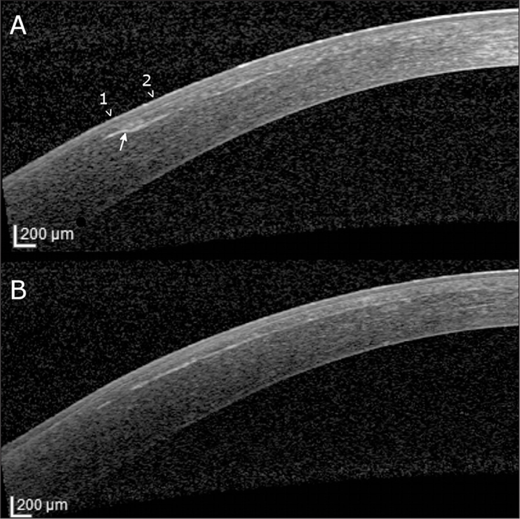 Anterior segment optical coherence tomography at the lenticule edge 3 months after a 3.5 diopters astigmatic correction with SMILE. (A) Image taken at the main meridian. An abrupt stromal change is observed at the edge of the removed lenticule (arrow). The slightly sloped edge is most likely due to the 0.1-mm transition zone. The overlying epithelium shows matching changes (arrowheads) with thin epithelium at the edge (1) and an increased thickness more centrally (2). (B) Image taken 90° orthogonal to the main meridian. The interface is seen as smooth with no abrupt changes.