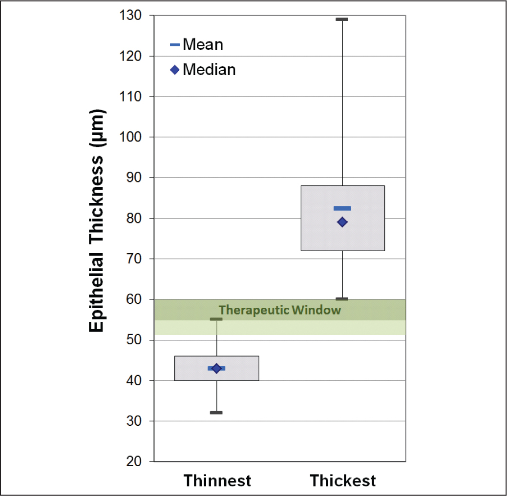 "Boxplot displaying preoperative Artemis VHF digital ultrasound (ArcScan, Inc., Morrison, CO) thinnest and thickest epithelium for the entire population. The ""therapeutic window"" is defined as between the population's maximum thinnest epithelium and minimum thinnest epithelium. Dark green indicates the narrow ""therapeutic window,"" including an anomalously high thinnest epithelium, and light green indicates a wider ""therapeutic window"" without this outlier."