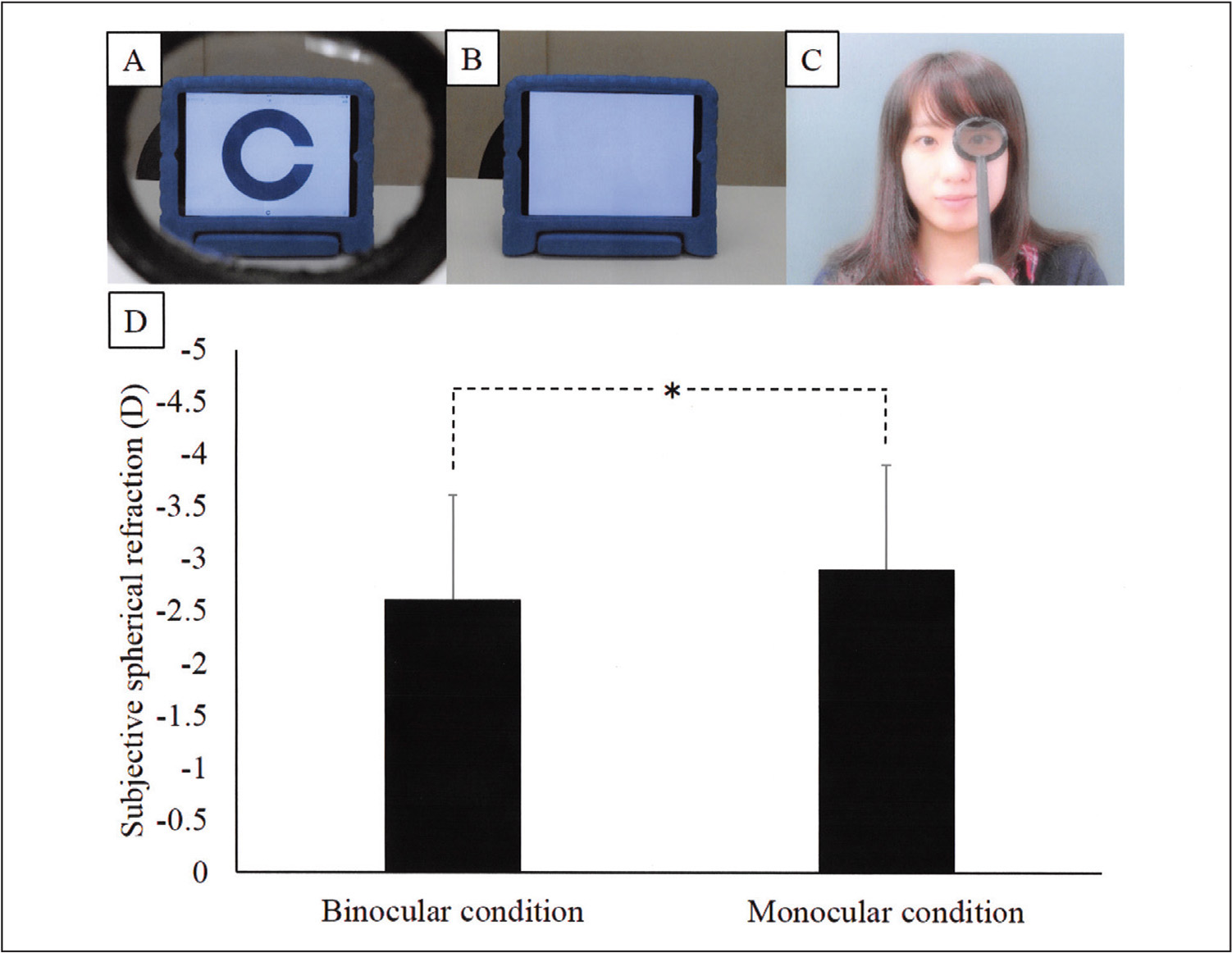 New concept binocular visual acuity test (Occlupad; Japan Focus Co., Ltd., Tokyo, Japan). The polarizing lens designed for viewing the device (A) was made with a white screen displayed to the untested eye and (B) the Landolt-C chart was displayed only to the tested eye. (C) A difference of subjective spherical refraction between binocular open-viewing and monocular viewing condition. (D) The subjective spherical refraction values are from a right eye. *P < .001 (Wilcoxon signed rank sum test).