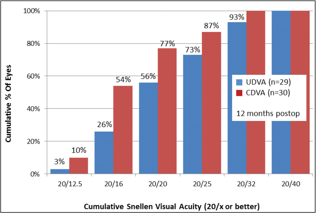 Uncorrected (UDVA) and corrected (CDVA) distance visual acuity 12 months after toric intraocular lens implantation.